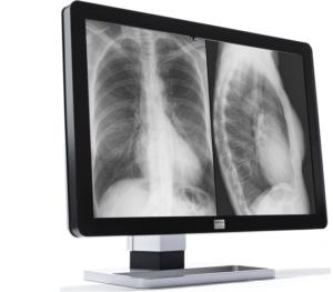 Barco Diagnostic Displays