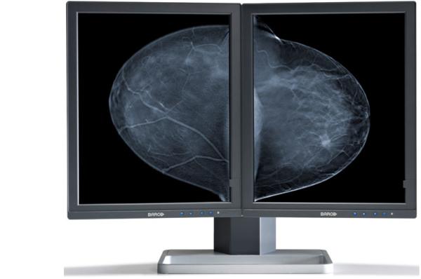 Barco Mammography Displays