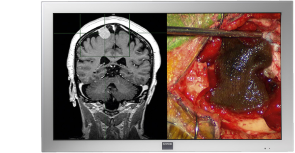 Barco Surgical Displays