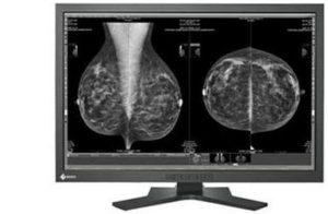 Eizo Mammography Displays