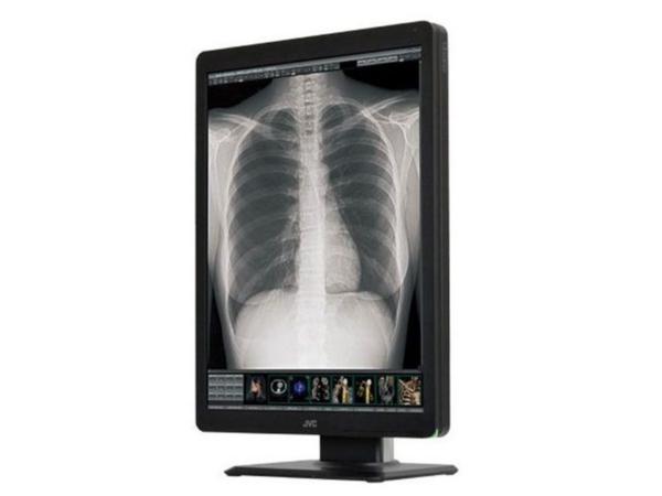 LCD Medical Monitor Display