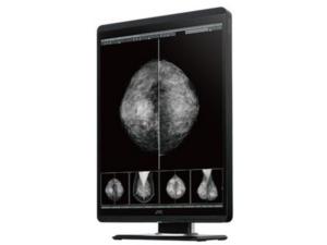 JVC Mannography