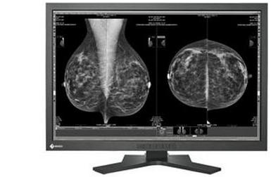Eizo Mammography Displays