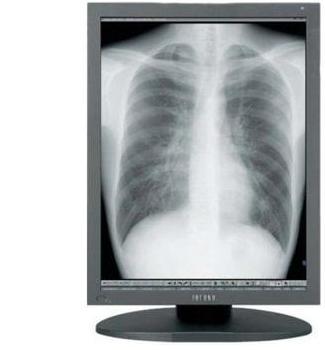 Totoku Monochrome Medical Displays