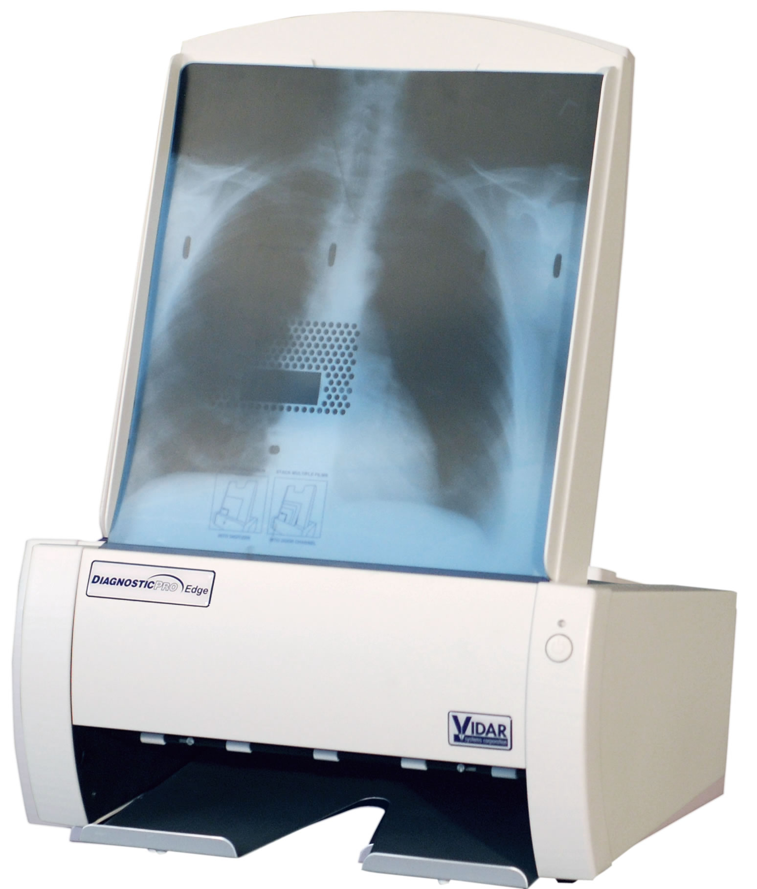 vidar diagnosticpro edge xray